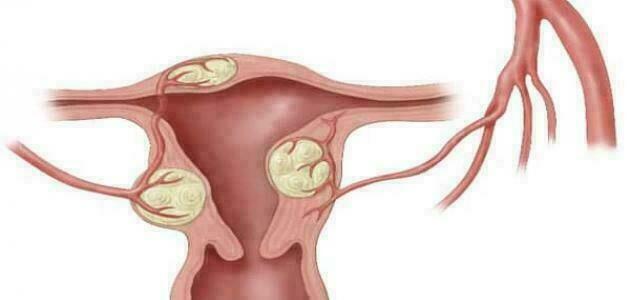 أسباب ميلان الرحم، وماهي الاعراض؟