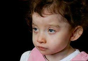 إصابة طفلة باضطراب يمنعها من الكلام.. تعرفي على الأعراض