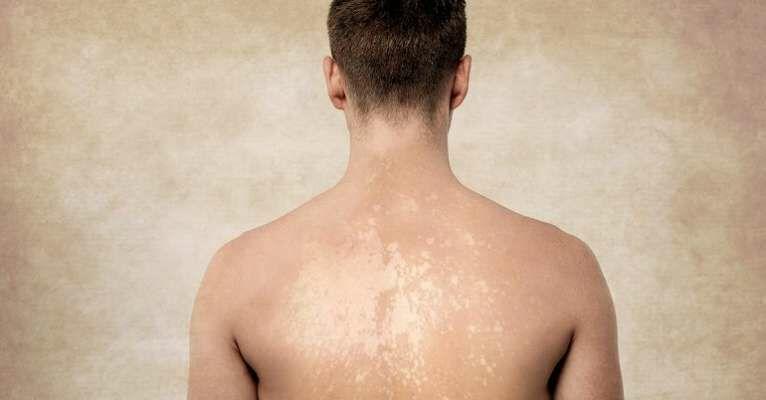 المرض الفطرى الشائع بفصل الصيف