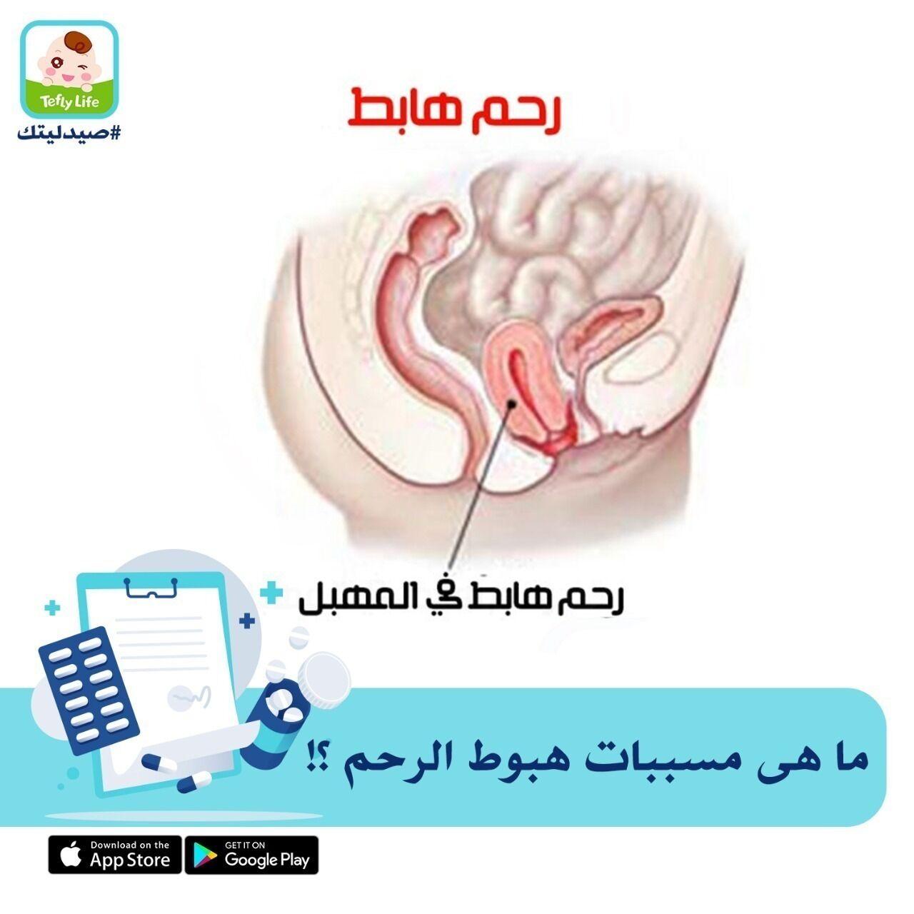 الولادات الطبيعية المتكررة قد تؤدى إلى سقوط الرحم خارج المهبل