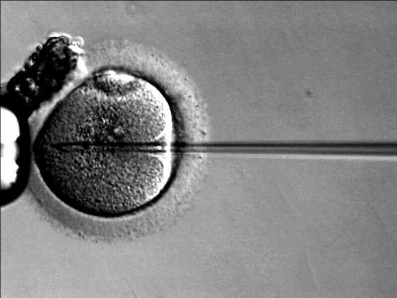 هل الزوج سبب في الإجهاض او فشل الحقن المجهري؟