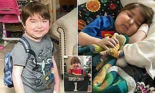 مرض مجهول يمنع طفلًا من تناول الطعام