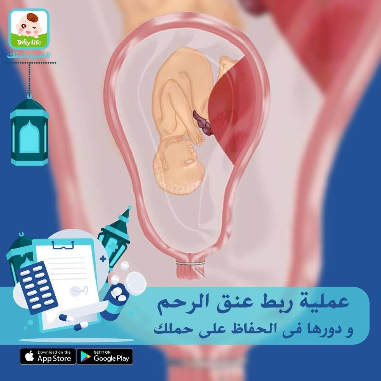 ما هى عملية ربط عنق الرحم، و كيف تقى من خطر الولادة المبكرة؟