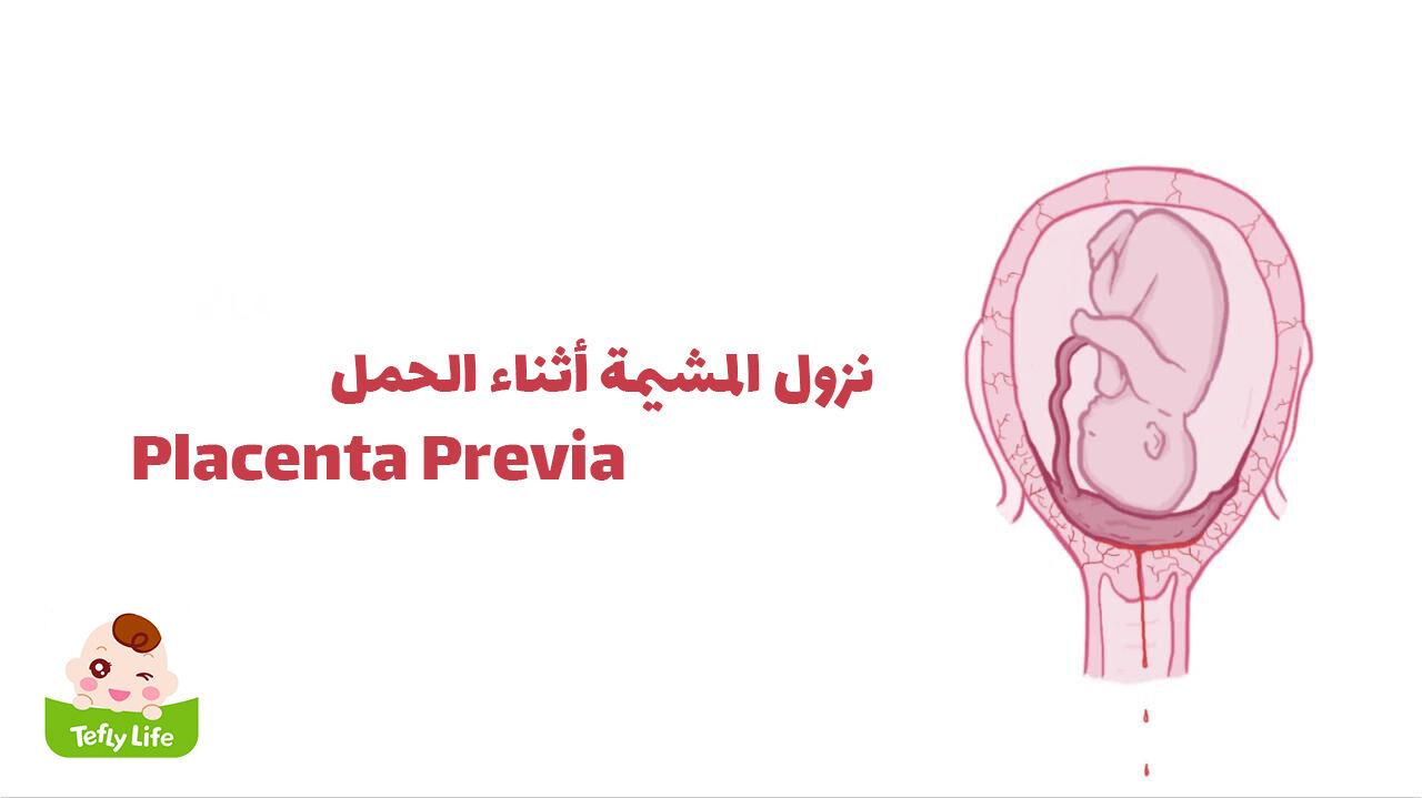 نزول المشيمة أثناء الحمل