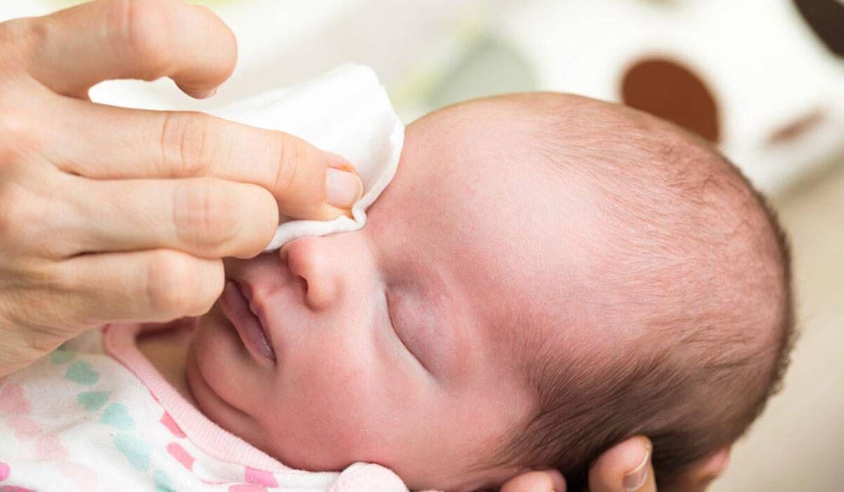 عماص العين لدي الرضع كيف تتعاملين معه؟