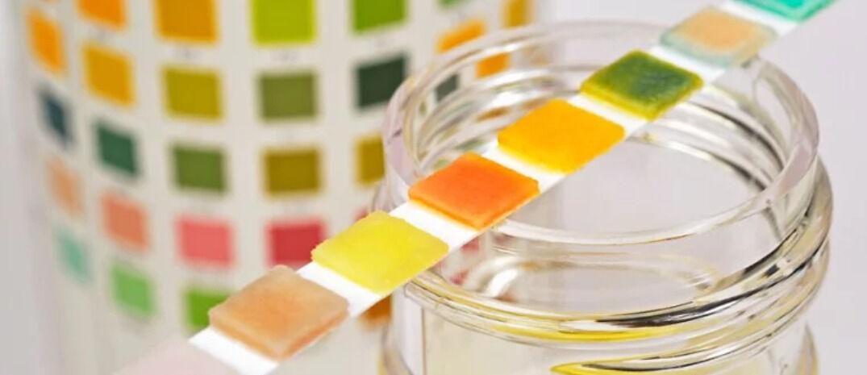 اختلاف لون البول عند الحامل ودلالاته المرضية