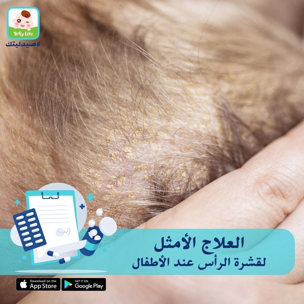 تعرفى على الحل الأكثر أماناً لعلاج قشرة الرأس مع د.هبة الله مصطفى